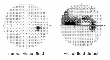 A curtain-like shadow over your visual field