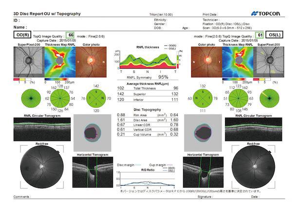 視神経乳頭形状解析レポート