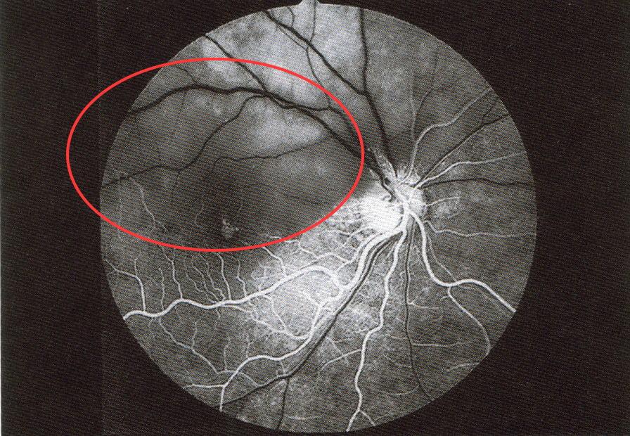 網膜中心動脈分岐閉塞症