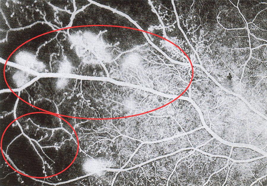 網膜中心静脈分岐閉塞症
