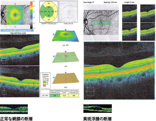 網膜・黄斑部の断層画像