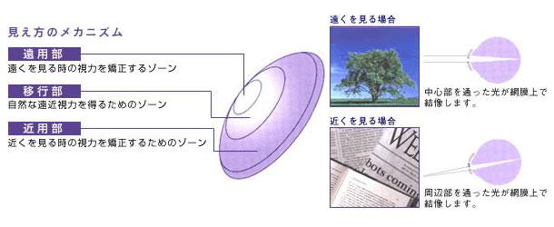 メニコン/メニフォーカルZ