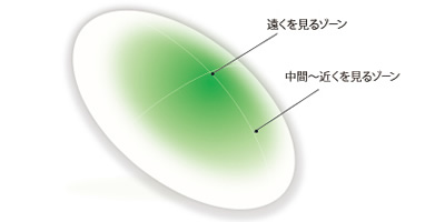 Multifocal O2 M