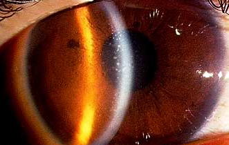 角膜実質炎