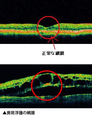 正常な網膜/黄斑浮腫の網膜
