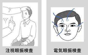 注視眼振検査/電気眼振検査