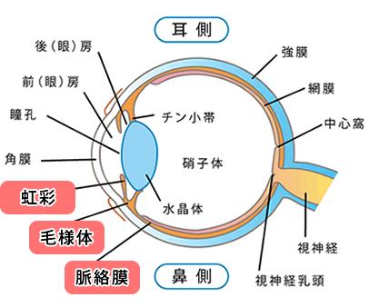 急性前部ぶどう膜炎/図