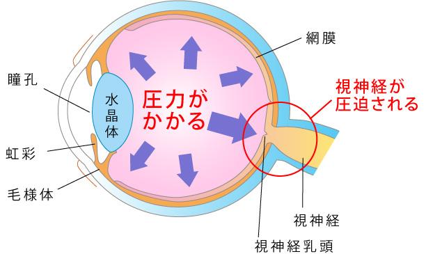 眼圧が高い図