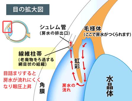 線維柱帯の目詰まり