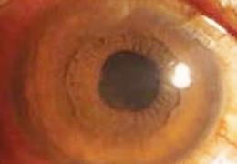代表的な角膜疾患