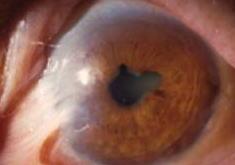 角膜デルモイド