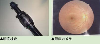 照射部位の状況やその他の眼底の状態を把握しレーザーの必要性や有効性を判断します。